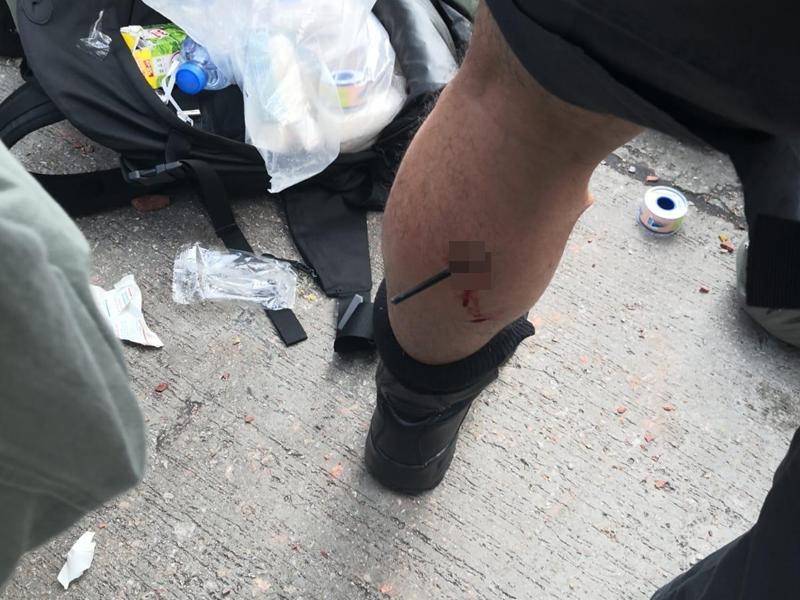 http://www.thestandard.com.hk/breaking-news/section/3/137159/Arrow-struck-policeman-in-his-calf