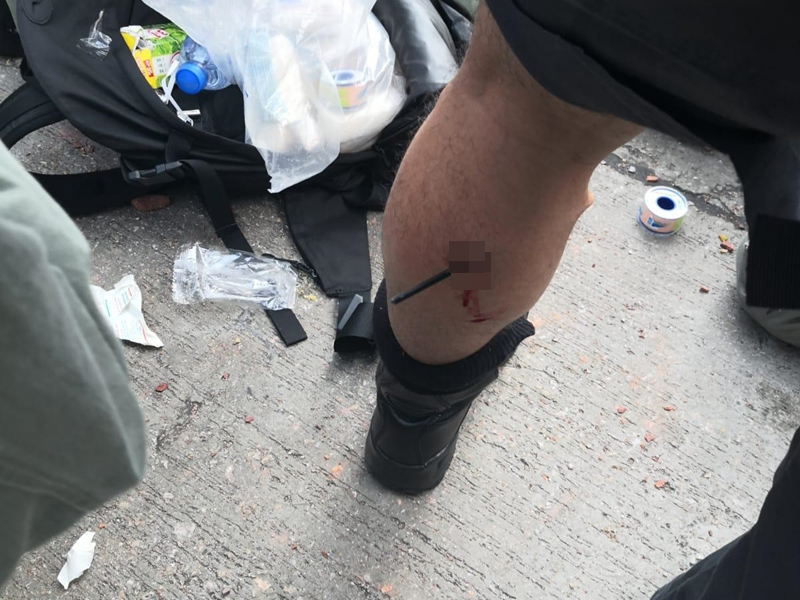 http://www.thestandard.com.hk/section-news/section/4/214062/Shot-officer-speaks-up